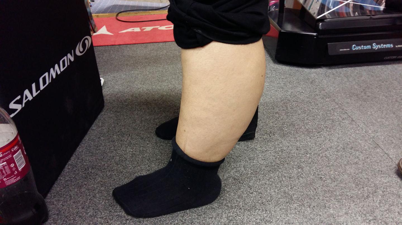 Egyedi lábfejformák
